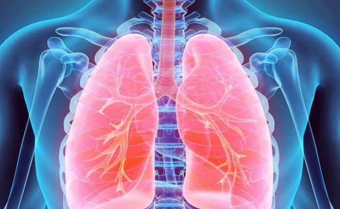 Svarbiausi plaučių vėžio rizikos veiksniai